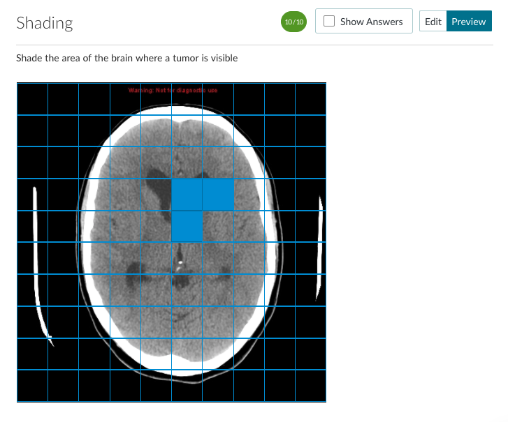 Shading example when used with a brain scan